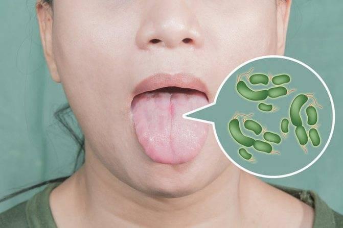 Грибок в горле: что это? как лечить у взрослых и детей. фото