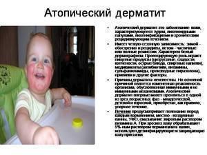 атопический дерматит у детей комаровский