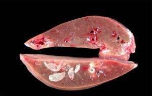черви в печени человека