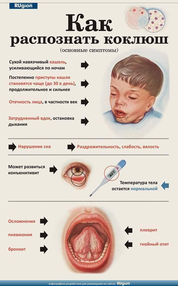 Как быстро вылечить лающий кашель у ребенка?