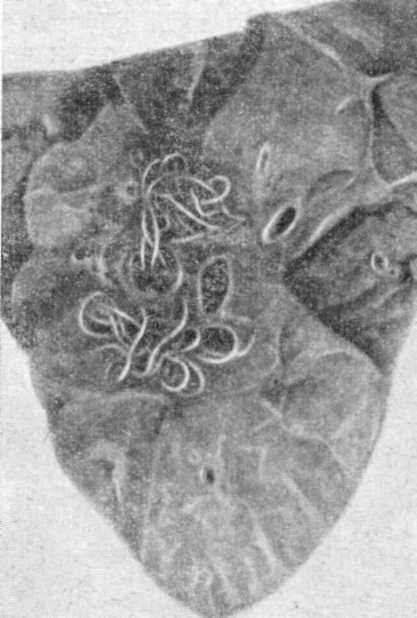 гельминты в легких симптомы