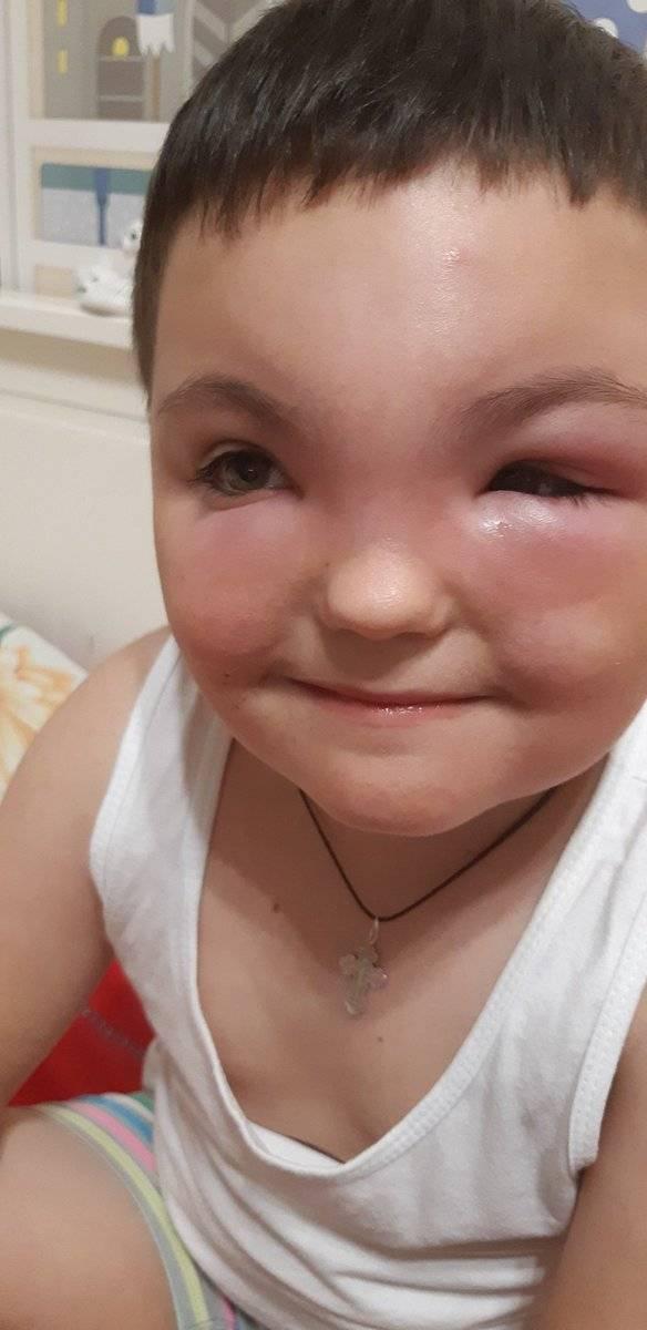 отек глаза от укуса комара у ребенка