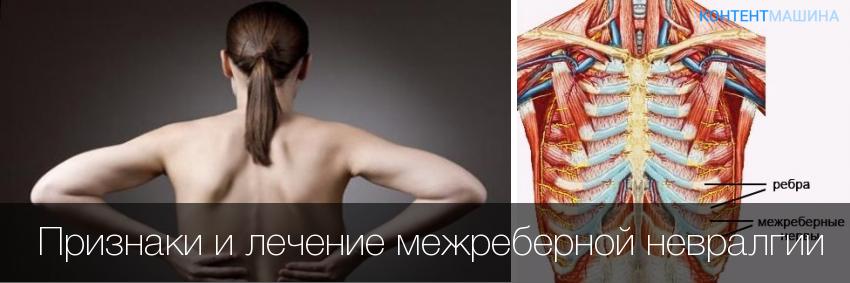 Мышечная невралгия грудной клетки лечение