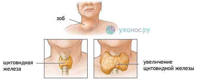 Боли в щитовидке: причины и методы их устранения