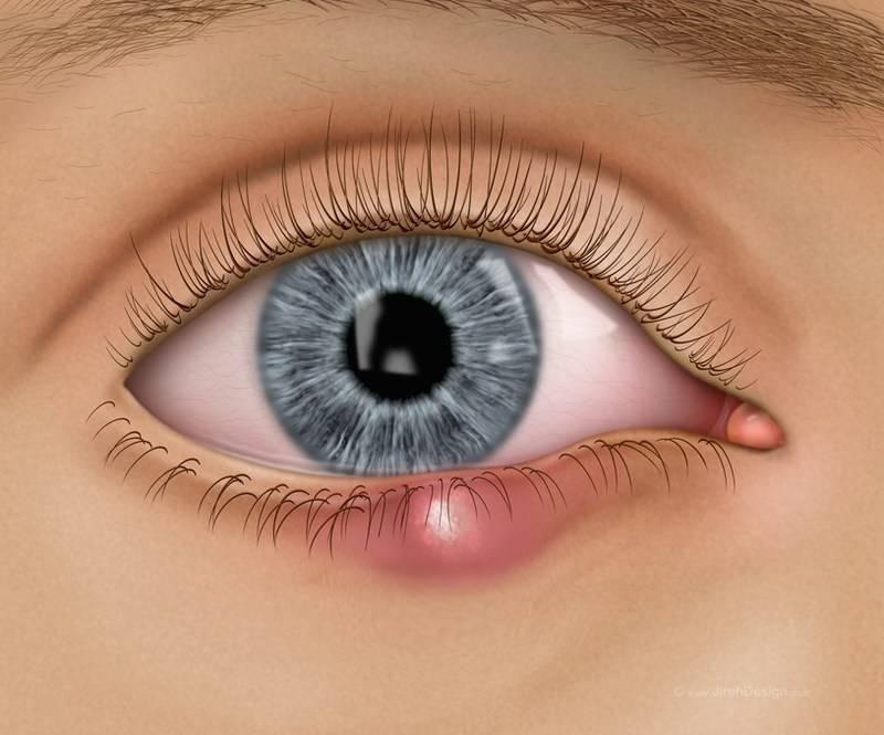 ячмень на глазу как лечить в домашних условиях у детей