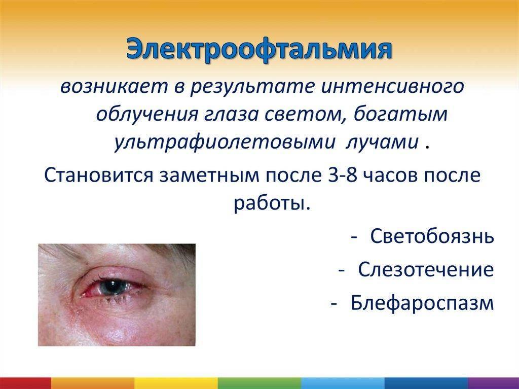 Первая помощь и лечение при ожоге глаз сваркой