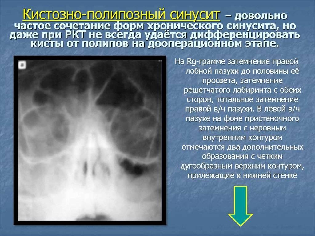 Лечение полипозного синусита, народные средства