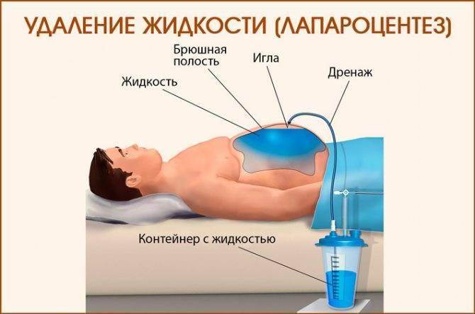 как лечить асцит при циррозе