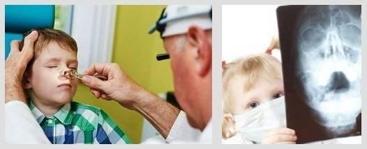 ребенок ударился носом нос распух