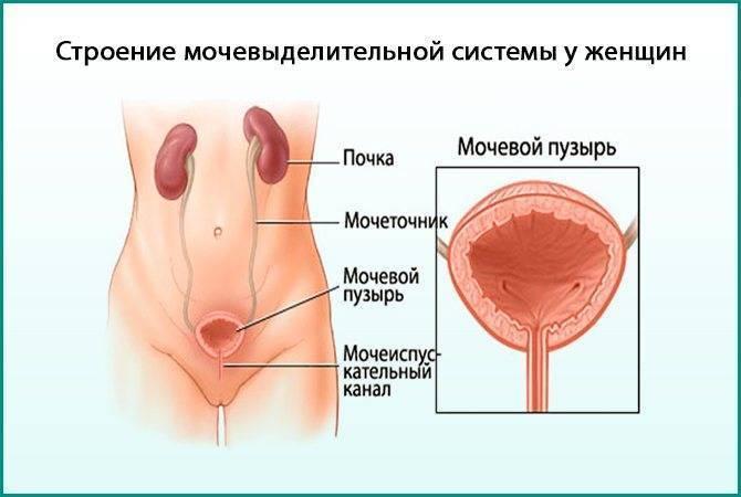 Тяжелая форма цистита: мочеиспускание с кровью