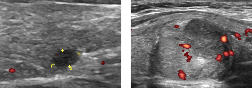 Гипоэхогенный узел щитовидной железы с четкими контурами