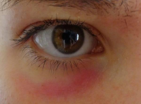 под глазом появилось красное пятно