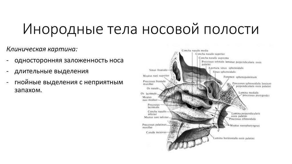 Инородные тела носа - симптомы болезни, профилактика и лечение инородных тел носа, причины заболевания и его диагностика на eurolab