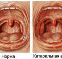 Хронический тонзиллит при беременности: симптомы и лечение