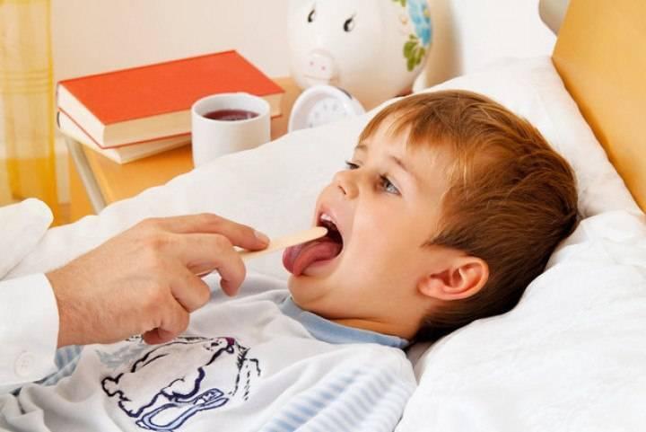 как вылечить горло ребенку 3 лет