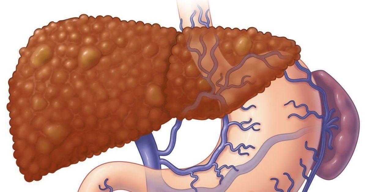 Передаются ли по наследству заболевания печени?