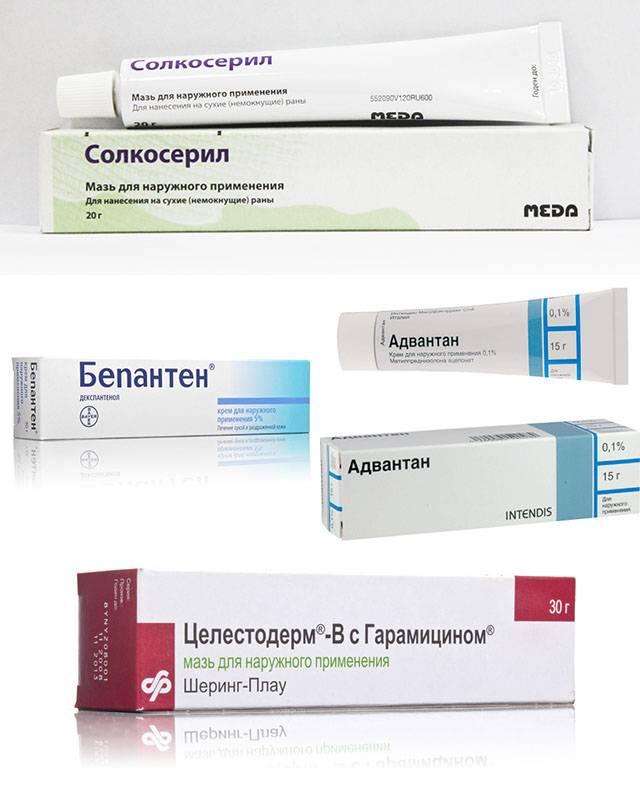 Паховый дерматит у женщин лечение