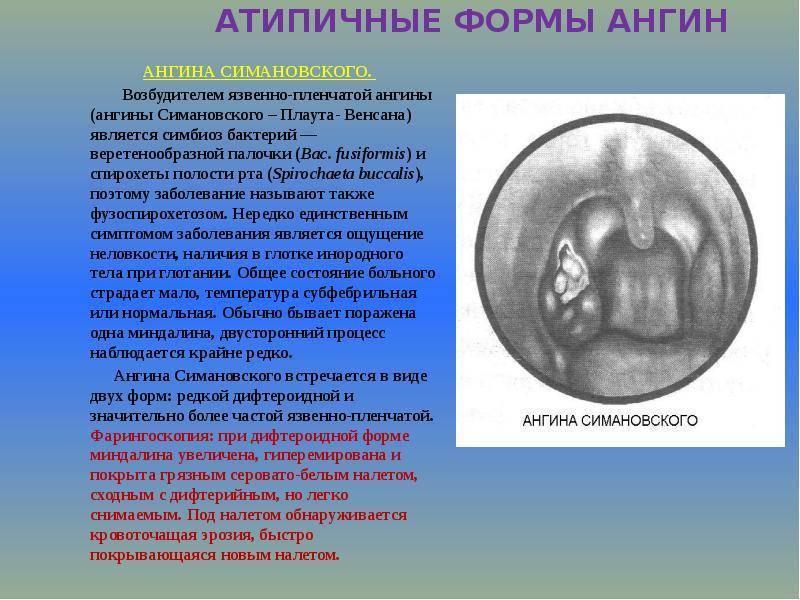 Ангина симановского-венсана: особенности и лечение