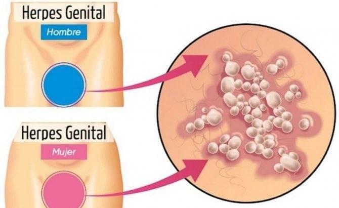 Генитальный герпес – психология болезни —  витагерпавак