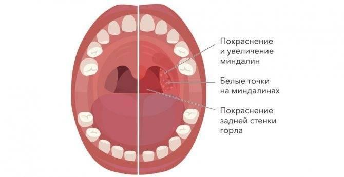 Чем обусловлено появление белых точек в горле?
