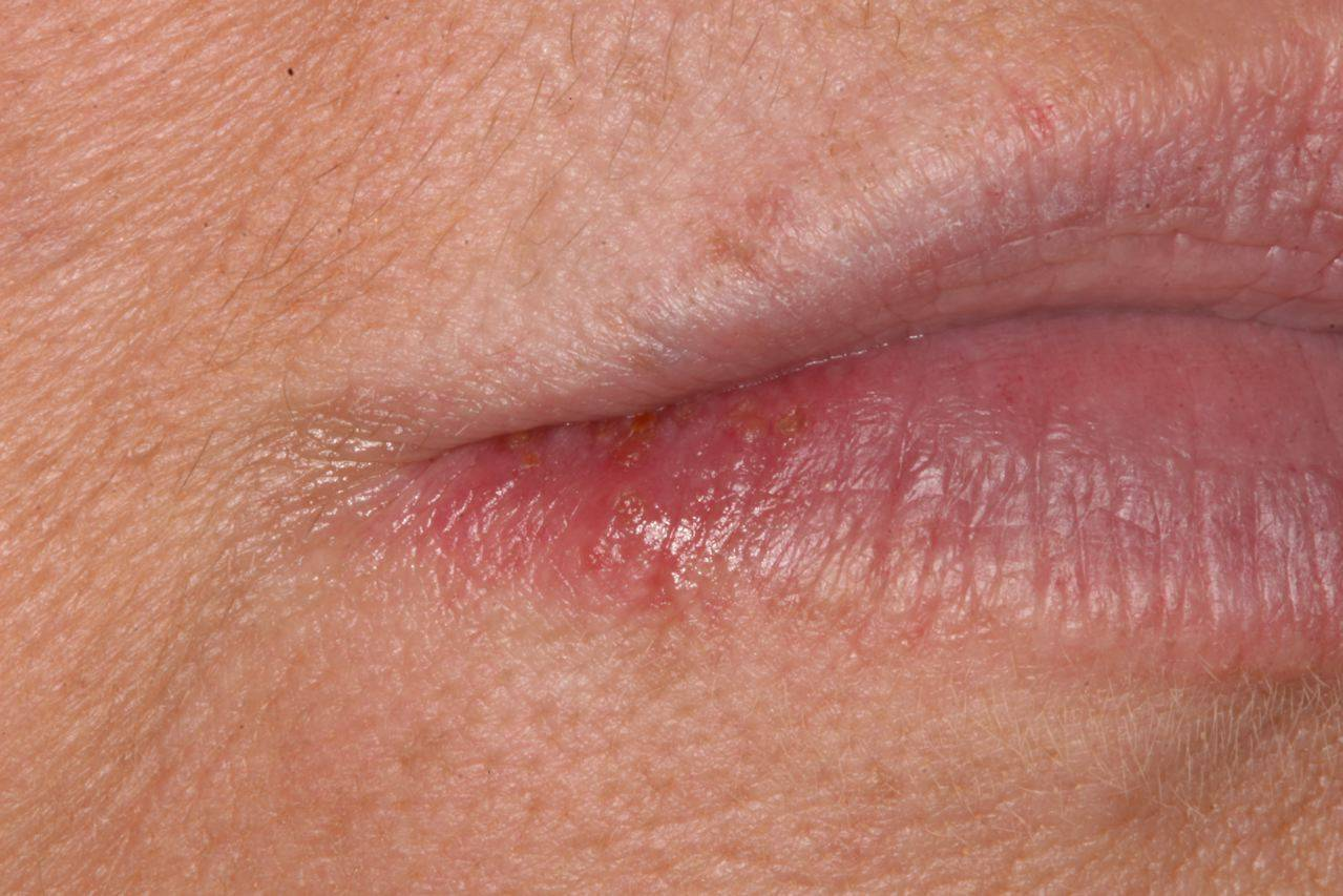 из за чего появляется герпес на губах