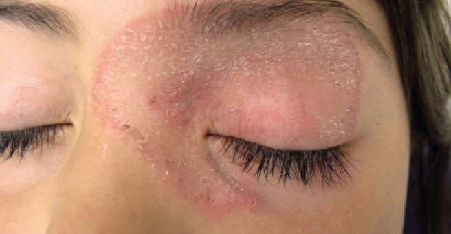 Псориаз на глазах (веках) — причины, симптомы, лечение