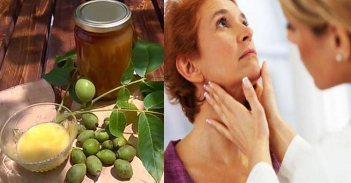 лечение зоба щитовидной железы народными средствами