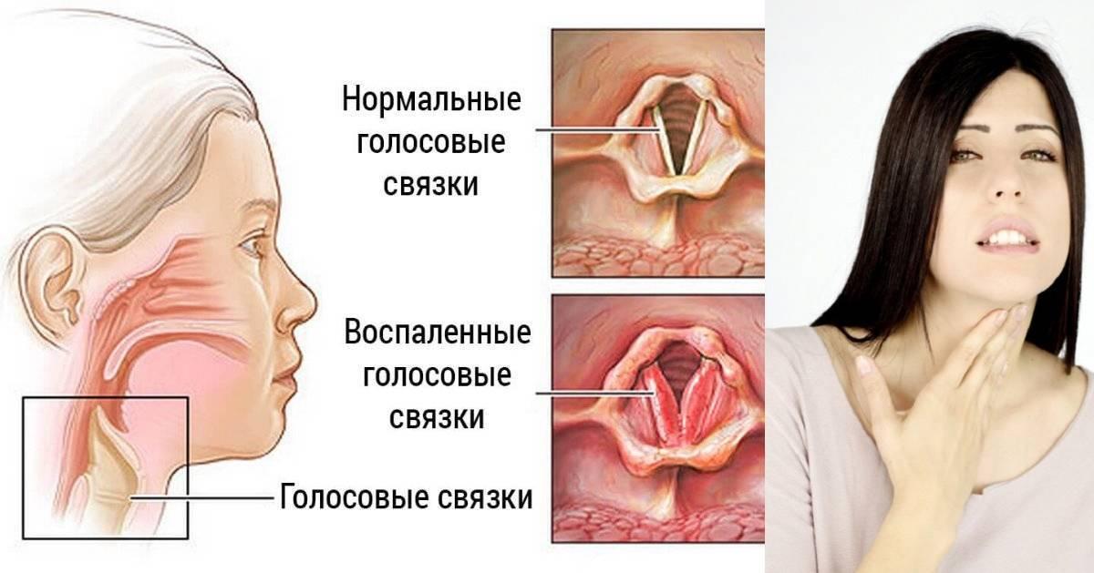 Щекочет в горле и беспокоит кашель