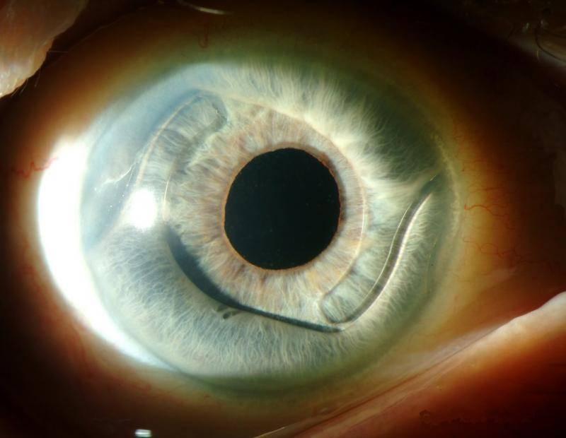 искусственный хрусталик глаза срок службы