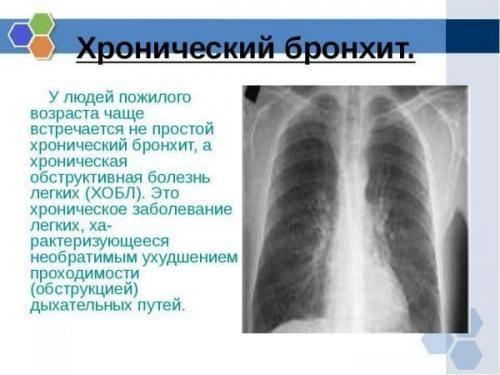 Трахеит: причины, симптомы и лечение