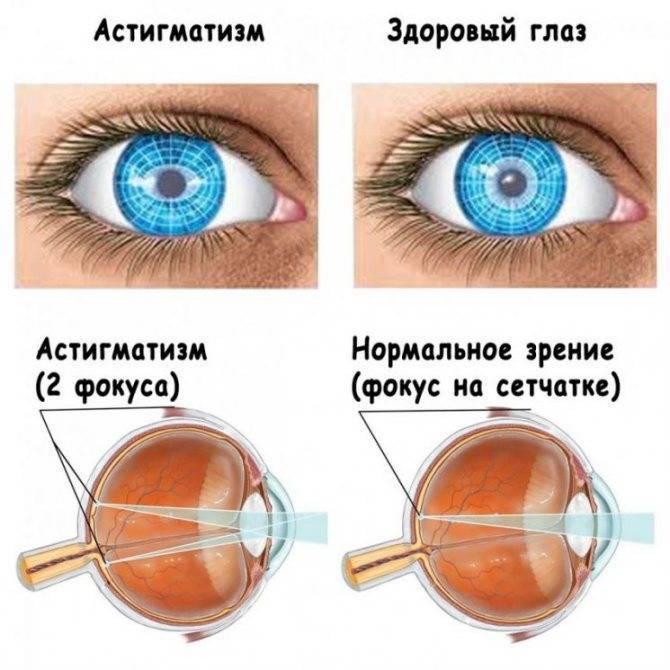 Можно ли носить контактные линзы при астигматизме: правила подбора