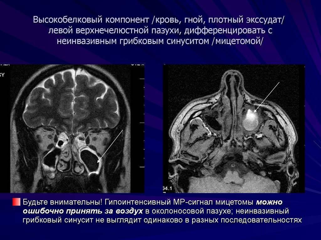 Мицетома: грибковое тело в гайморовой пазухе — симптомы