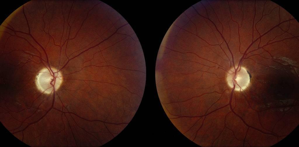 атрофия зрительного нерва причины