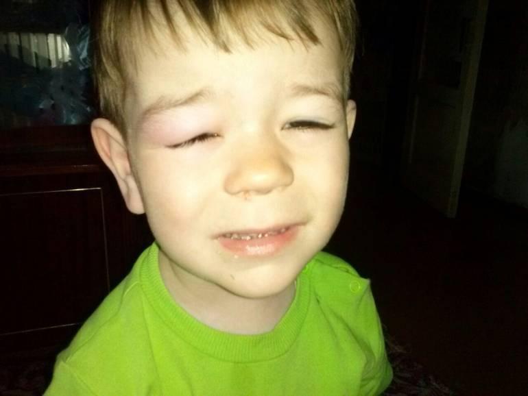 комар укусил в глаз ребенка