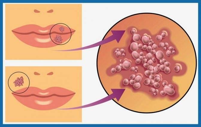 Как лечить герпес в интимной зоне при беременности?