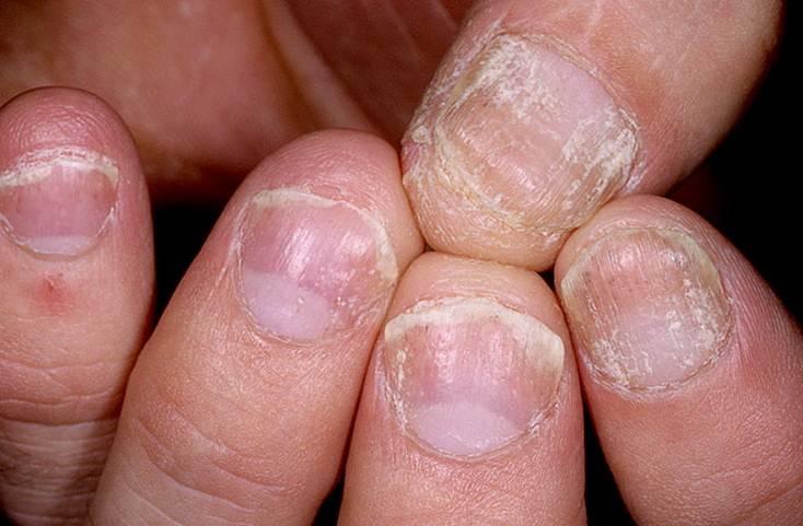псориаз под ногтями