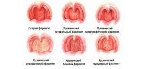 Фарингит у взрослых: симптомы и схема лечения в домашних условиях