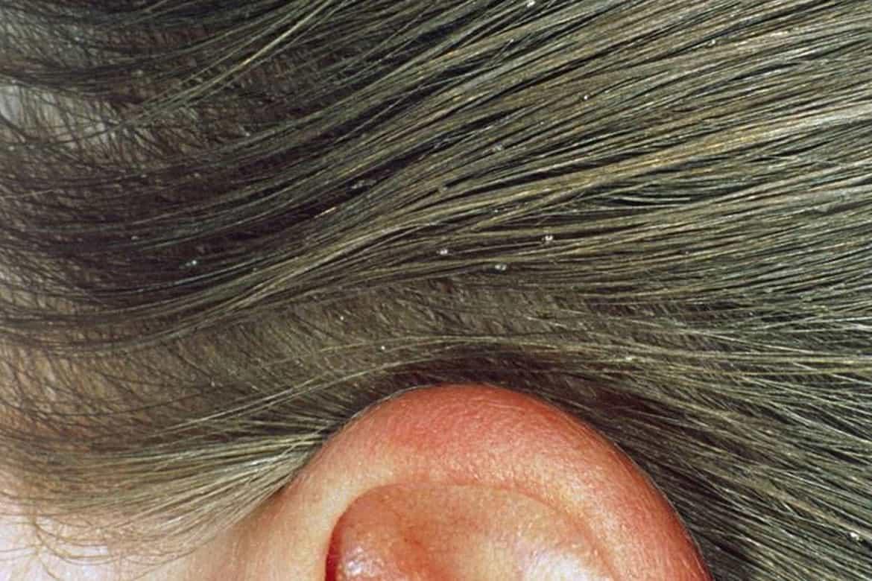 Вши и гниды: инкубационный период, лечение и профилактика