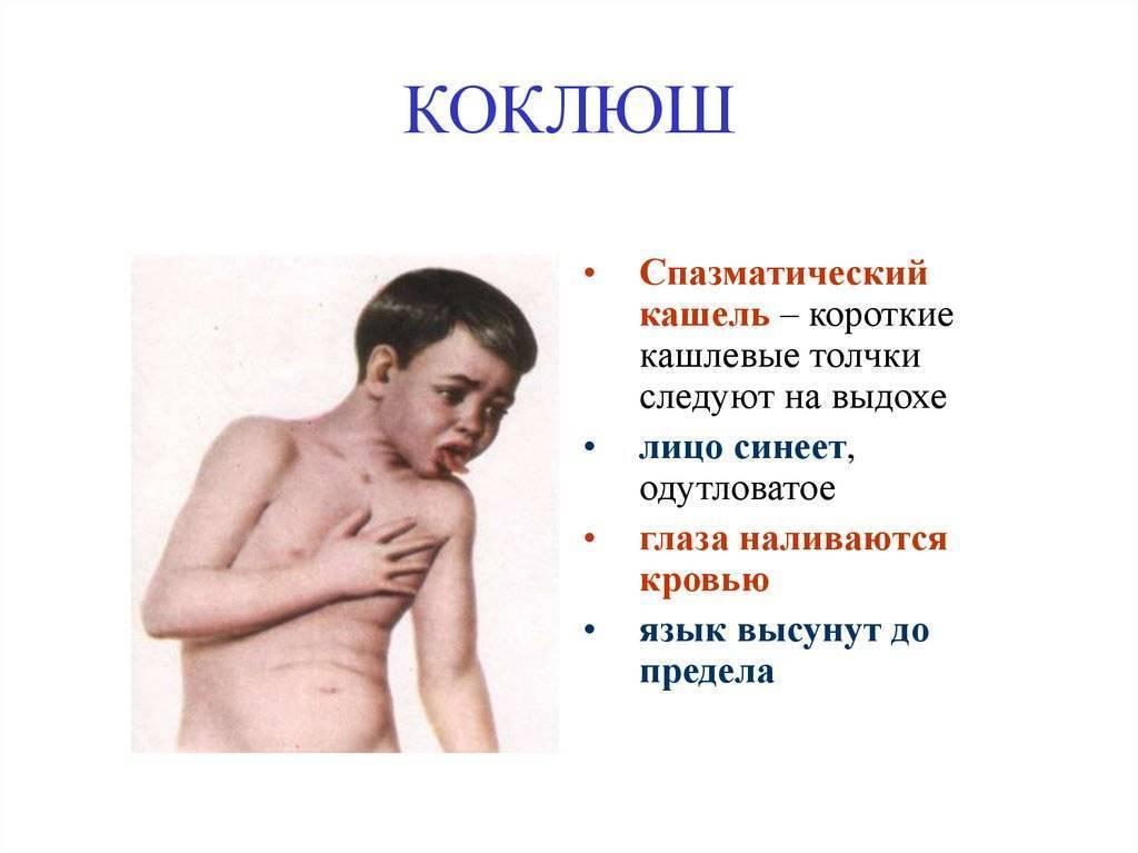 спазматический кашель у ребенка