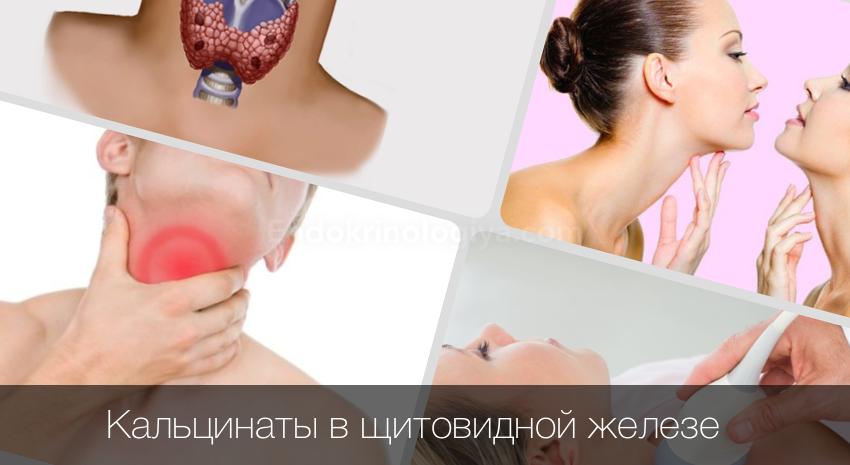 микрокальцинаты в щитовидной железе что это такое