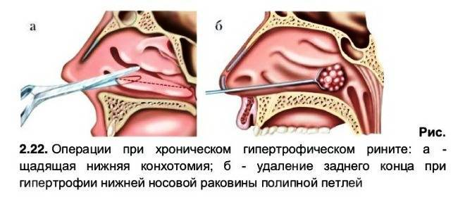 почему в носу кровяные козявки