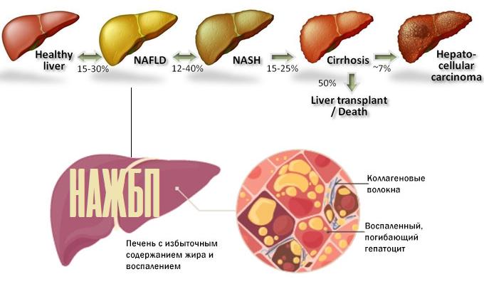 Неалкогольная жировая болезнь печени (нажбп, нажб)