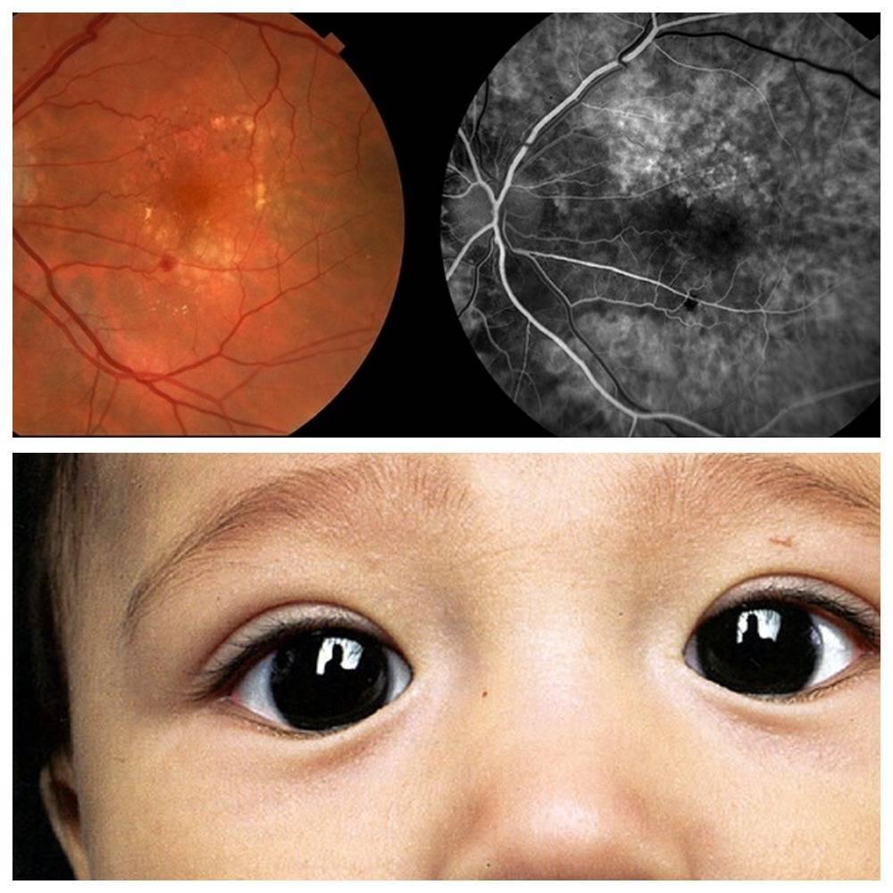 ангиопатия сетчатки у ребенка