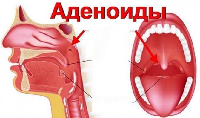 Аденоиды у детей симптомы и лечение, как выглядят аденоиды в носу у ребенка, эффективное комплексное лечение