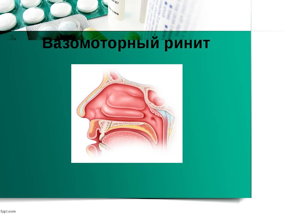 Симптомы вазомоторного ринита. вазомоторный ринит: причины, диагностика, лечение