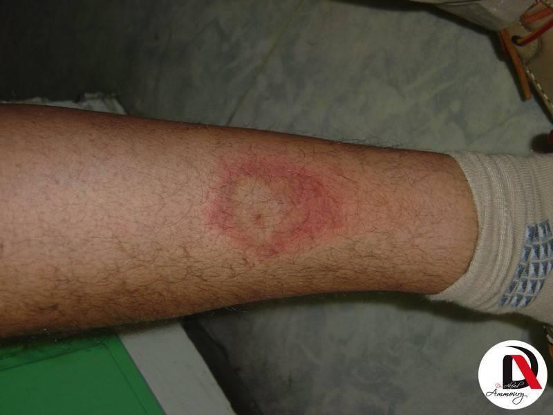 Экзематозный дерматит — лечение, причины и симптомы