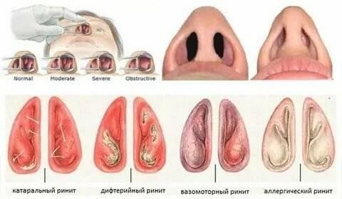 хронический вазомоторный ринит лечение в домашних условиях