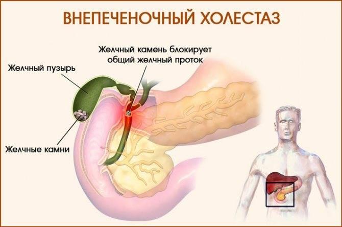 Холестаз (застой желчи) в печени