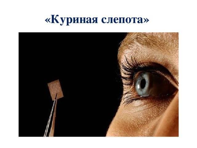 Нарушение сумеречного зрения это