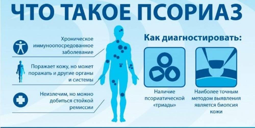 Лечение и профилактика псориаза в домашних условиях: медикаменты народные средства